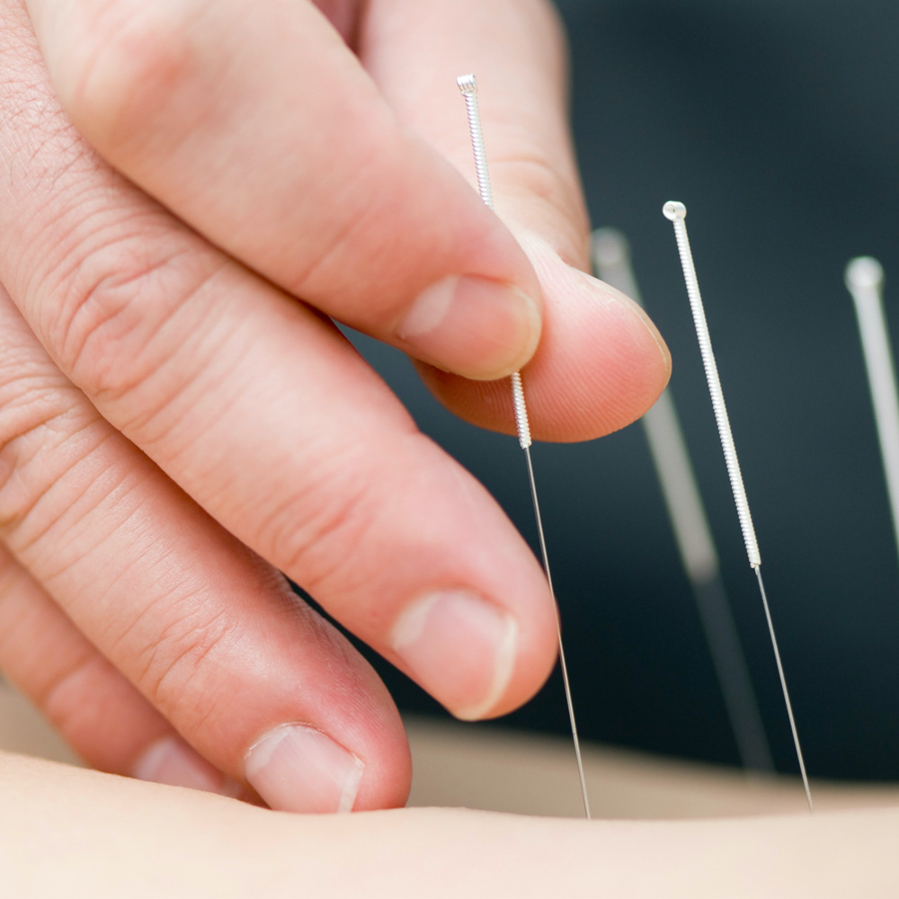 A close up of a hand placing acupuncture pins on someone