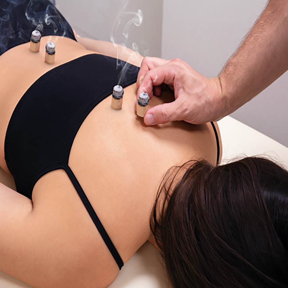 Four sticks of herbs placed on the back of a patient during moxibustion treatment