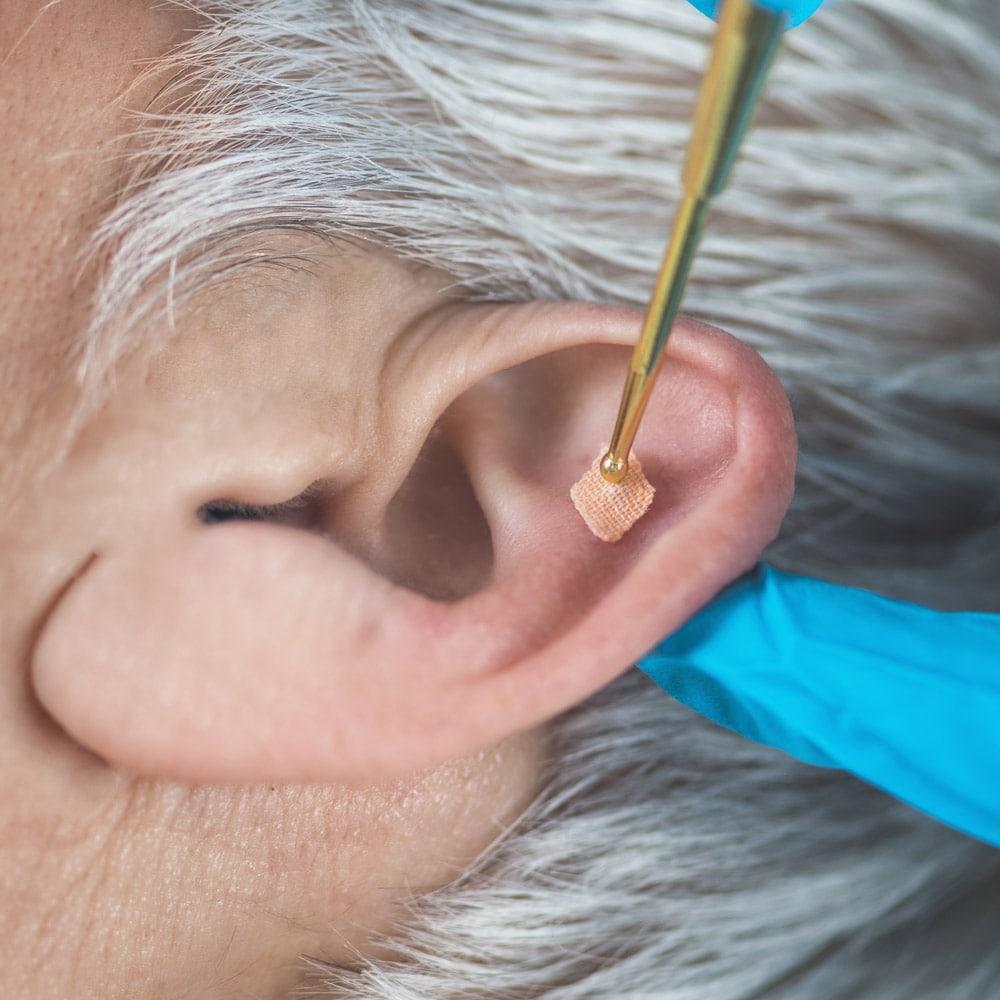 Auricular acupuncture denver auricular acupuncture